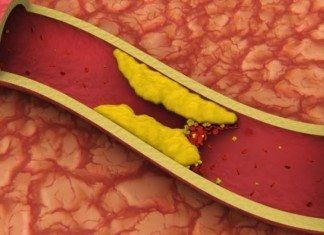 hiperlipidemias