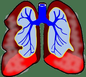 inflamacion isma infantil