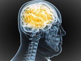 Radiografía de la cabeza de una persona con sobrepeso
